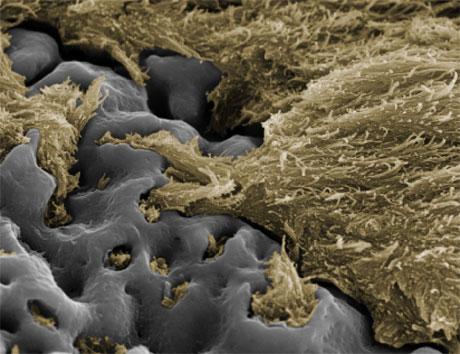 Uspešna integracija. Šest meseci po ugradnji kost (zlatno) sve više obavija šraf (sivo), pri čemu su od velike pomoći mikropore na šrafu
