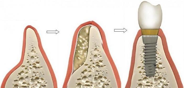 Dopuna kosti radi ugradnje implanta