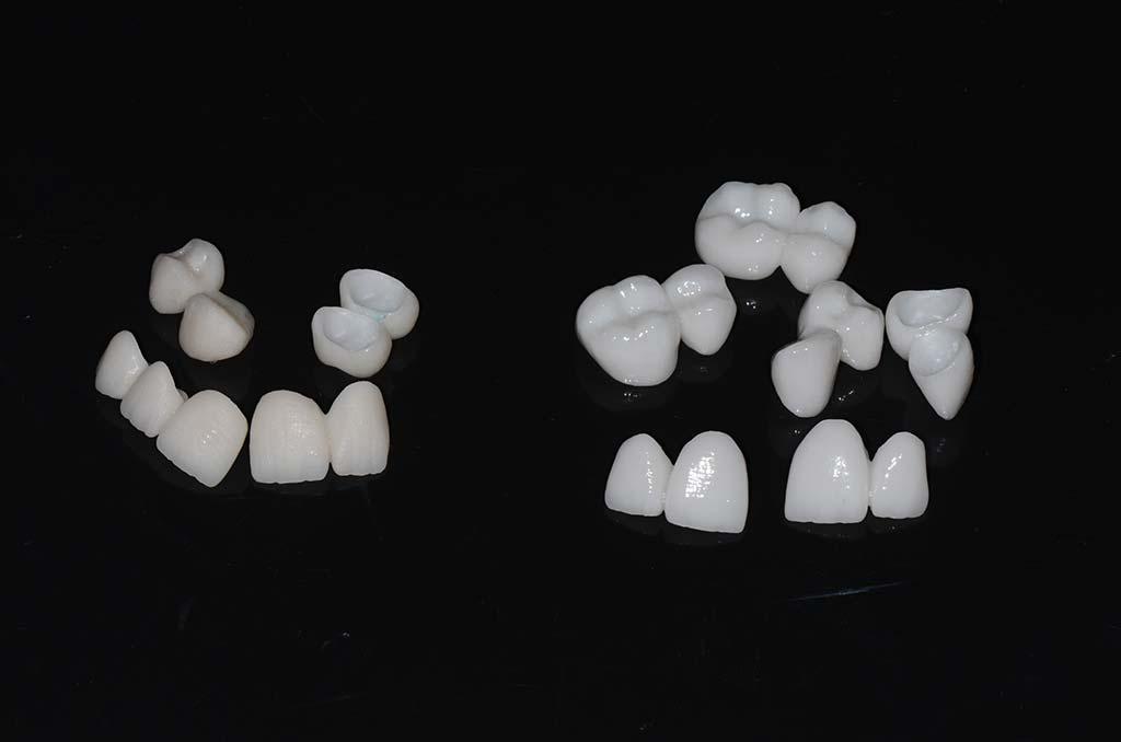 Proba-keramike-VS-gotovi-zubi