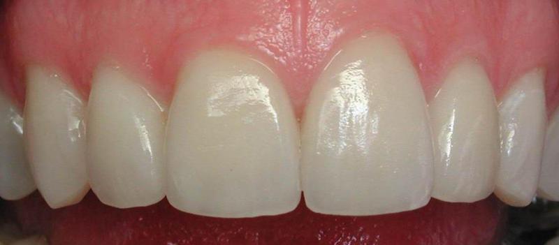 prednji zubi